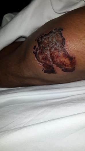 Místico II fue operado después de sufrir un accidente 1