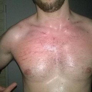 Pecho de Ricky Barceló tras su combate contra Bt Gunn