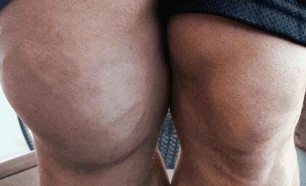 Imagen de la seria infección en la rodilla de Ryback 3